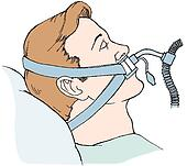 Clipart of Bag-valve-mask unit with oxygen and reservoir tube ...